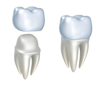 Image of how a tooth crown fits over a tooth which is used to protect the tooth and restore use after a root canal.