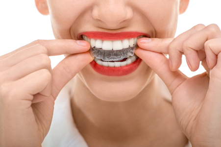 Image of a woman putting in her invisalign braces top tray.